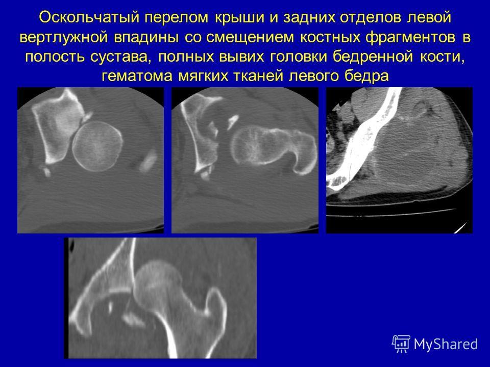 Оскольчатый перелом крыши и задних отделов левой вертлужной впадины со смещением костных фрагментов в полость сустава, полных вывих головки бедренной кости, гематома мягких тканей левого бедра