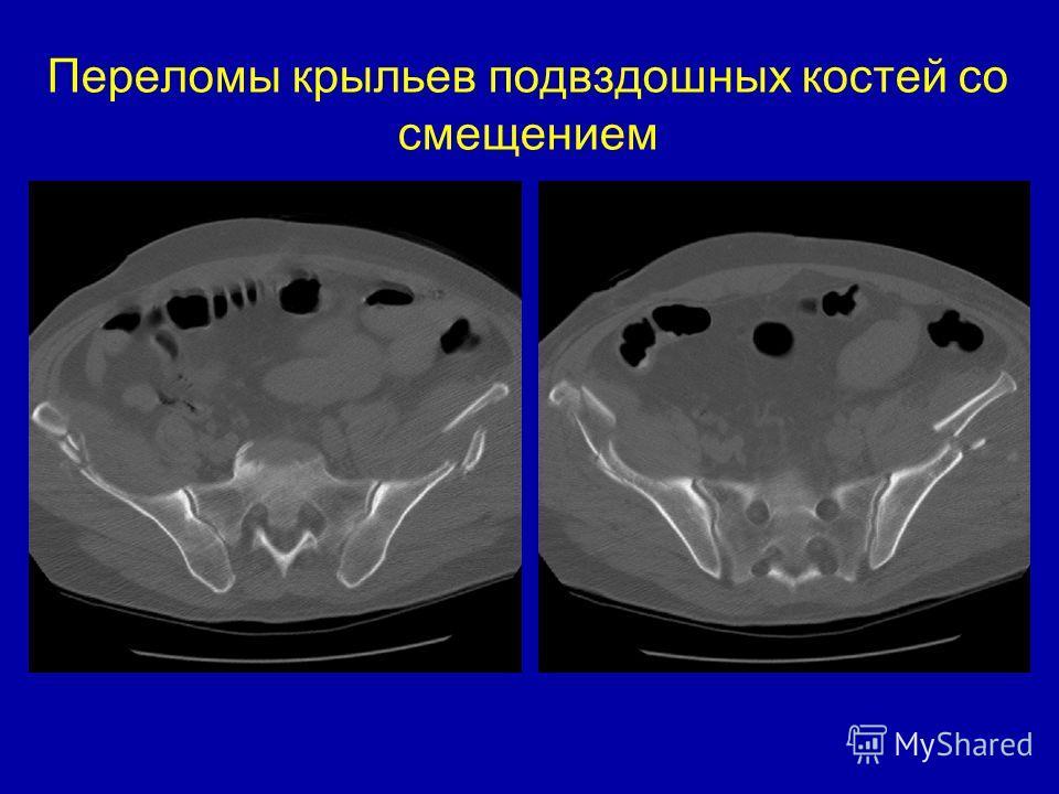Переломы крыльев подвздошных костей со смещением