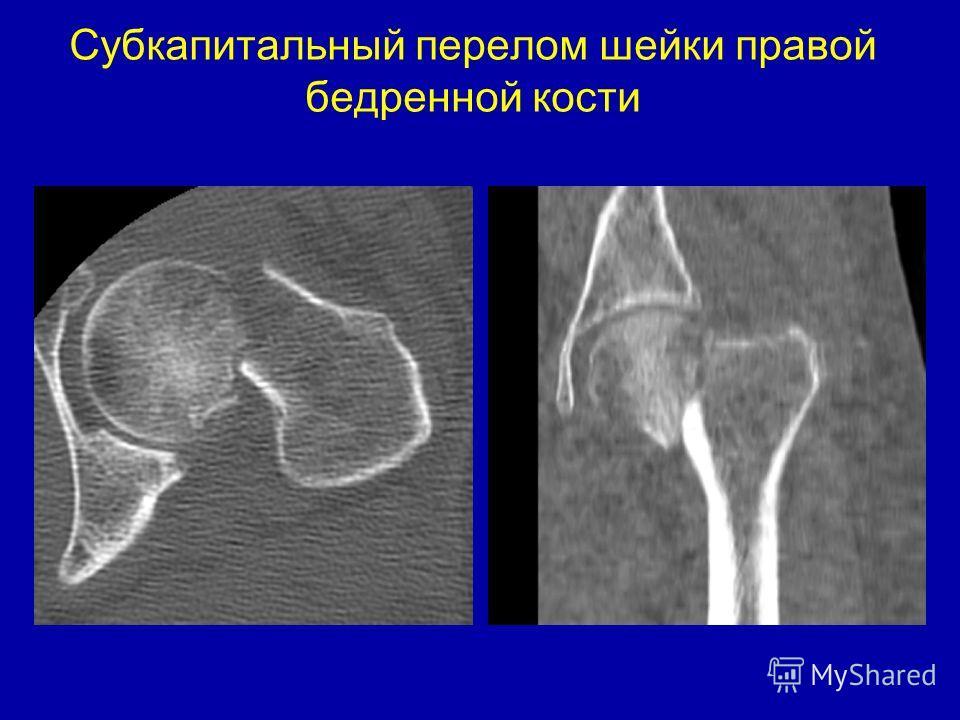 Субкапитальный перелом шейки правой бедренной кости