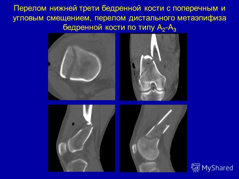 Перелом нижней трети бедренной кости с поперечным и угловым смещением, перелом дистального метаэпифиза бедренной кости по типу А 2 - А 3