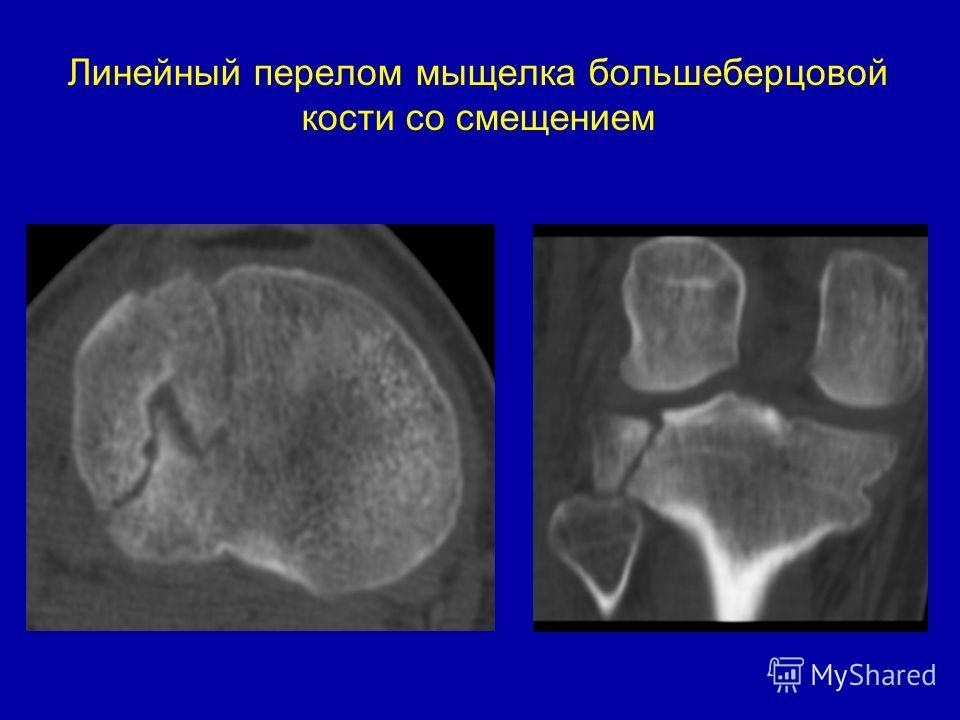 Линейный перелом мыщелка большеберцовой кости со смещением