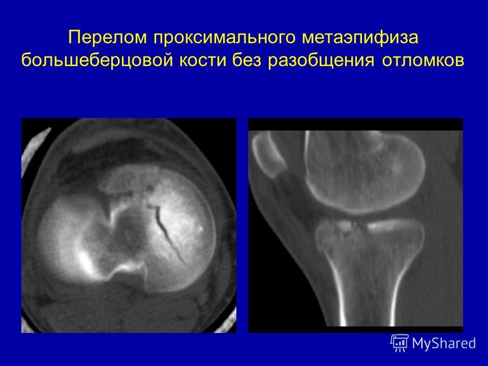 Перелом проксимального метаэпифиза большеберцовой кости без разобщения отломков