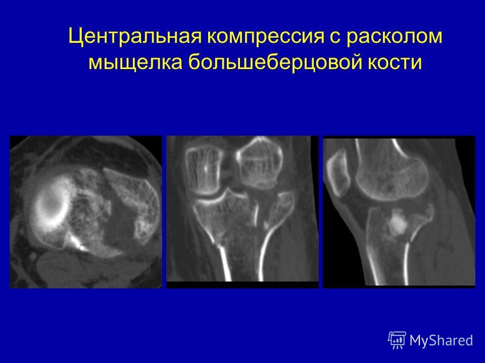 Центральная компрессия с расколом мыщелка большеберцовой кости