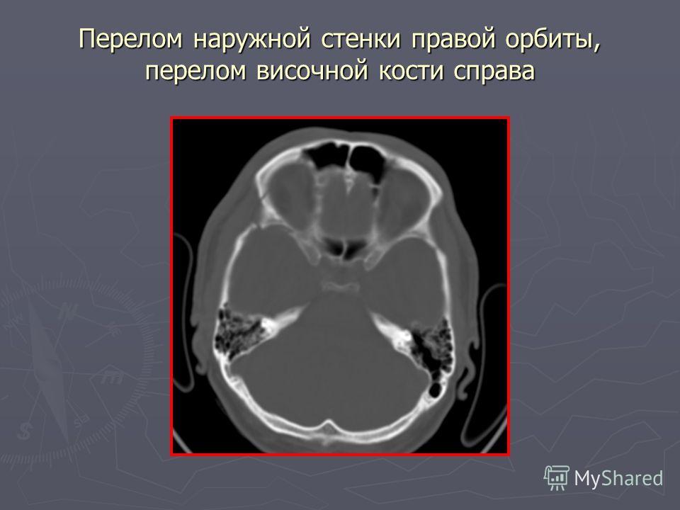 Перелом наружной стенки правой орбиты, перелом височной кости справа