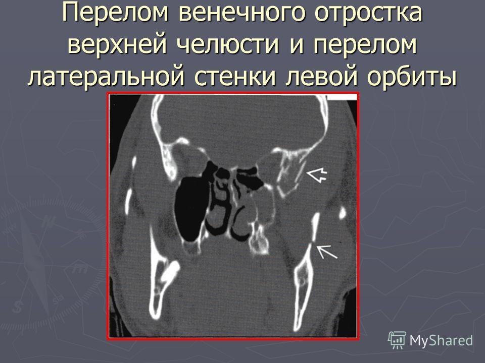 Перелом венечного отростка верхней челюсти и перелом латеральной стенки левой орбиты