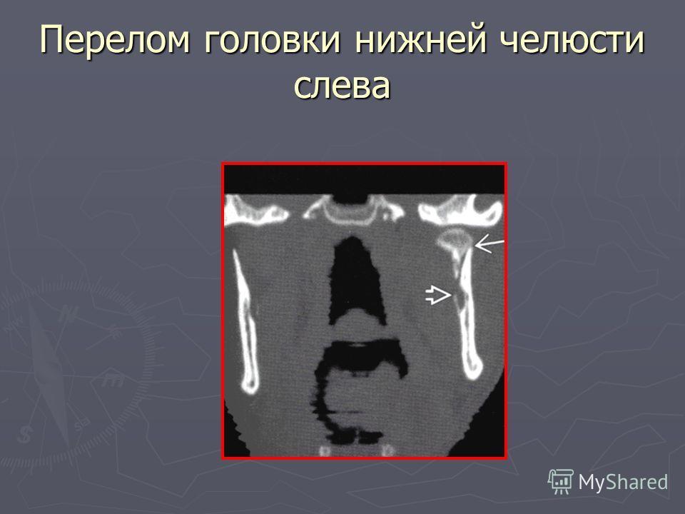 Перелом головки нижней челюсти слева