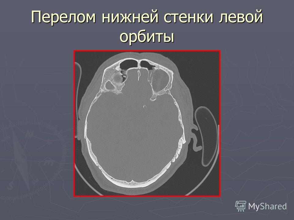 Перелом нижней стенки левой орбиты