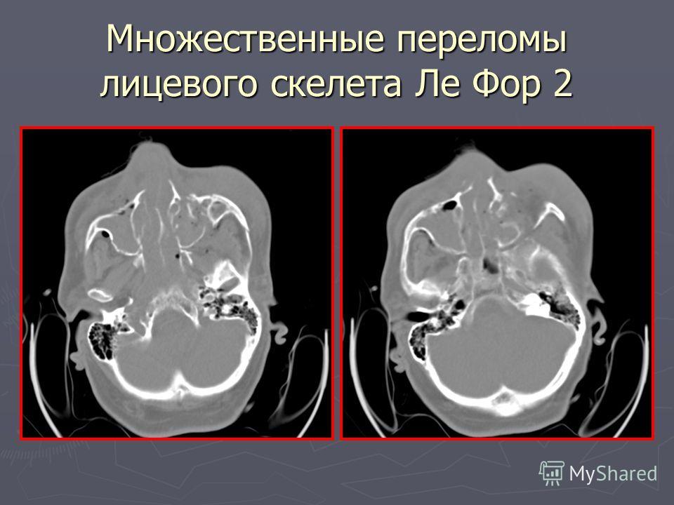 Множественные переломы лицевого скелета Ле Фор 2