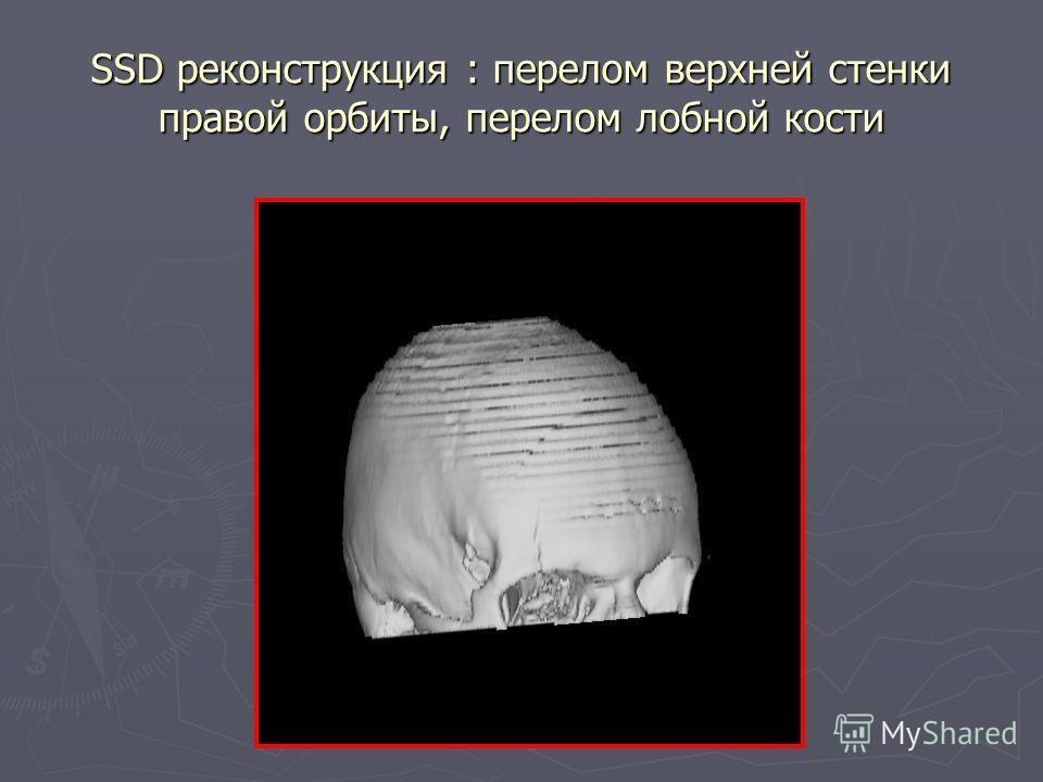 SSD реконструкция : перелом верхней стенки правой орбиты, перелом лобной кости