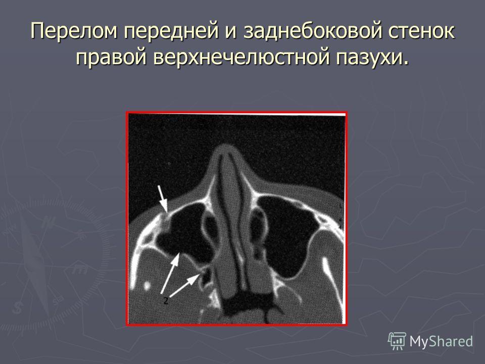 Перелом передней и заднебоковой стенок правой верхнечелюстной пазухи.