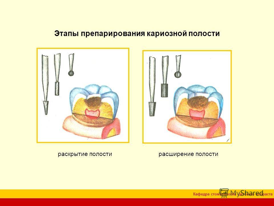 Кафедра стоматология детского возраста Этапы препарирования кариозной полости раскрытие полости расширение полости