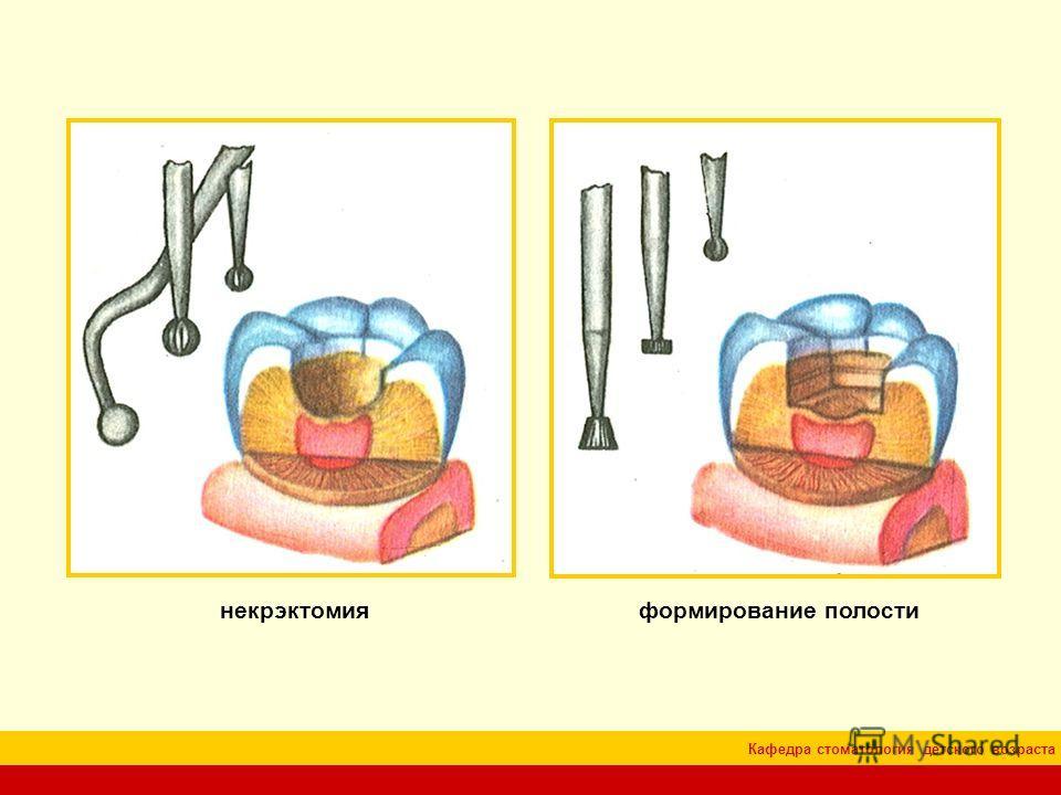 Кафедра стоматология детского возраста некрэктомия формирование полости