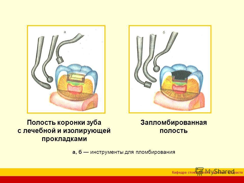 Кафедра стоматология детского возраста Полость коронки зуба с лечебной и изолирующей прокладками а, б инструменты для пломбирования Запломбированная полость