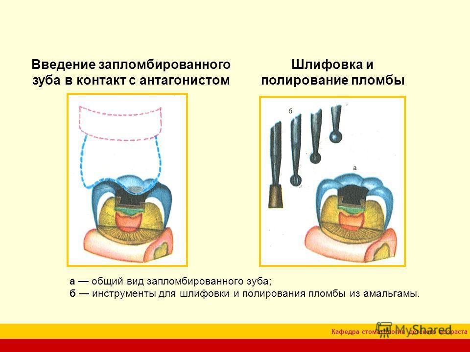 Кафедра стоматология детского возраста Введение запломбированного зуба в контакт с антагонистом Шлифовка и полирование пломбы а общий вид запломбированного зуба; б инструменты для шлифовки и полирования пломбы из амальгамы.