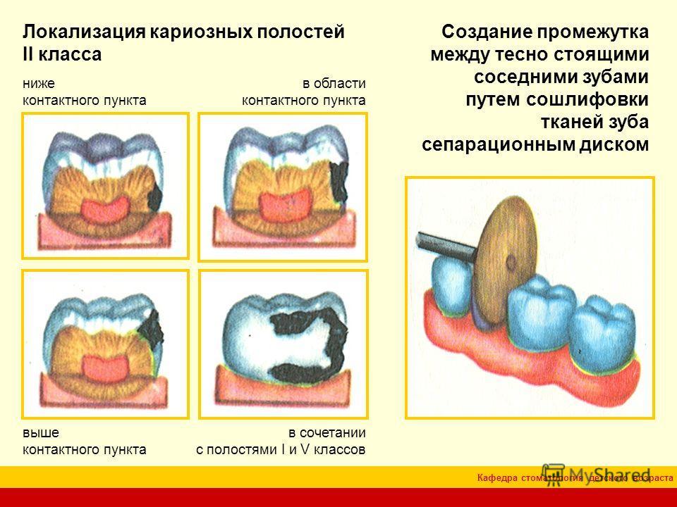 Кафедра стоматология детского возраста Локализация кариозных полостей II класса в области контактного пункта ниже контактного пункта выше контактного пункта в сочетании с полостями I и V классов Создание промежутка между тесно стоящими соседними зуба