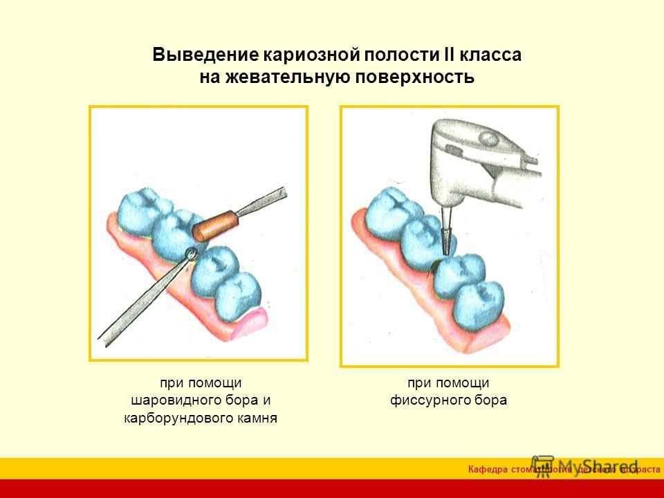 Кафедра стоматология детского возраста Выведение кариозной полости II класса на жевательную поверхность при помощи фиссурного бора при помощи шаровидного бора и карборундового камня