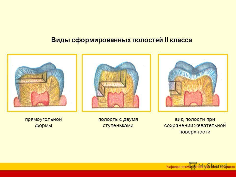 Кафедра стоматология детского возраста Виды сформированных полостей II класса прямоугольной формы полость с двумя ступеньками вид полости при сохранении жевательной поверхности
