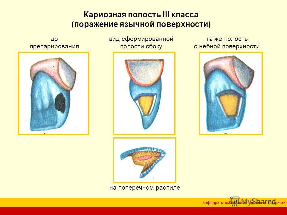 Кафедра стоматология детского возраста Кариозная полость III класса (поражение язычной поверхности) до препарирования вид сформированной полости сбоку та же полость с небной поверхности на поперечном распиле