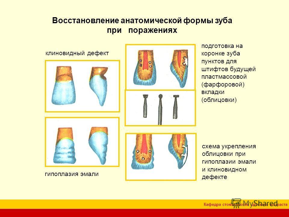 Кафедра стоматология детского возраста Восстановление анатомической формы зуба при поражениях клиновидный дефект гипоплазия эмали подготовка на коронке зуба пунктов для штифтов будущей пластмассовой (фарфоровой) вкладки (облицовки) схема укрепления о