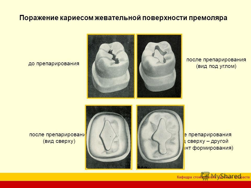 Кафедра стоматология детского возраста Поражение кариесом жевательной поверхности премоляра до препарирования после препарирования (вид под углом) после препарирования (вид сверху) после препарирования (вид сверху – другой вариант формирования)