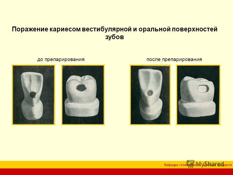 Кафедра стоматология детского возраста Поражение кариесом вестибулярной и оральной поверхностей зубов до препарированияпосле препарирования