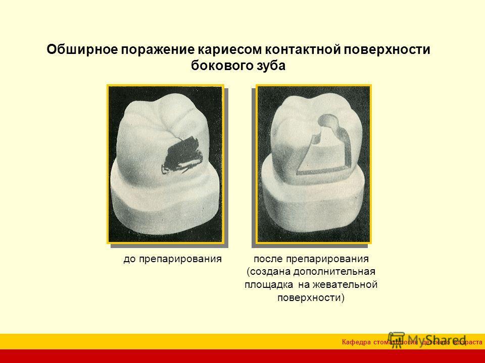 Кафедра стоматология детского возраста Обширное поражение кариесом контактной поверхности бокового зуба до препарированияпосле препарирования (создана дополнительная площадка на жевательной поверхности)