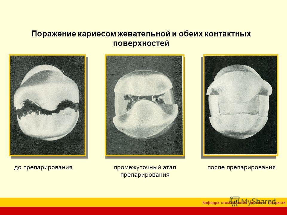 Кафедра стоматология детского возраста Поражение кариесом жевательной и обеих контактных поверхностей до препарированияпромежуточный этап препарирования после препарирования