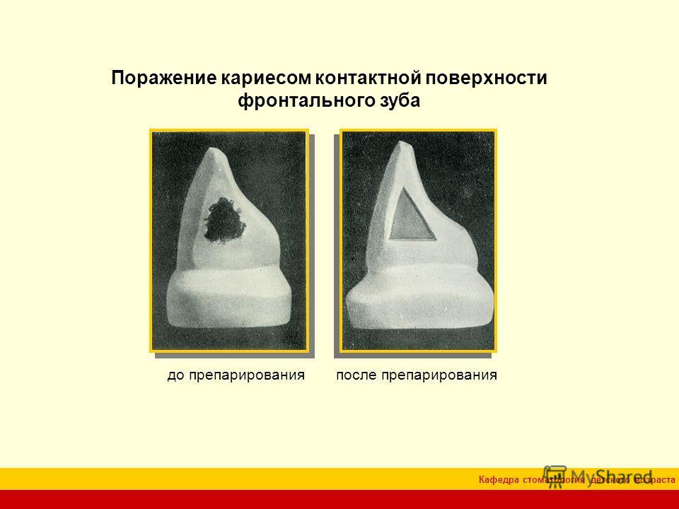 Кафедра стоматология детского возраста Поражение кариесом контактной поверхности фронтального зуба до препарированияпосле препарирования