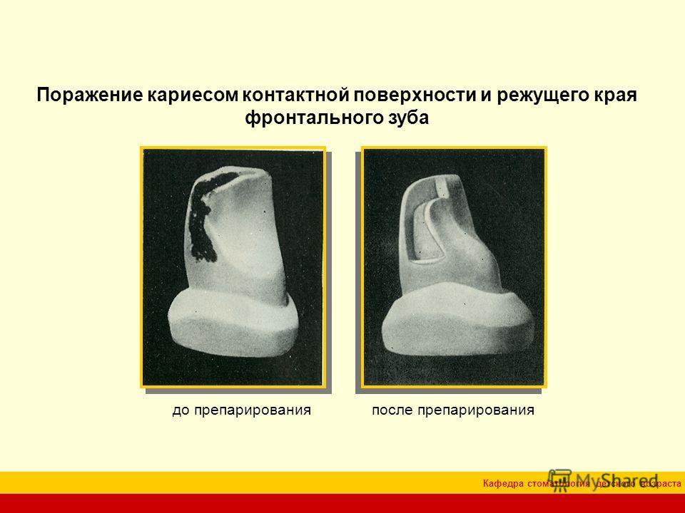 Кафедра стоматология детского возраста Поражение кариесом контактной поверхности и режущего края фронтального зуба до препарированияпосле препарирования