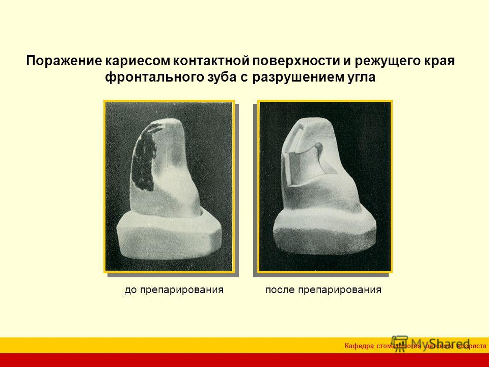 Кафедра стоматология детского возраста Поражение кариесом контактной поверхности и режущего края фронтального зуба с разрушением угла до препарированияпосле препарирования