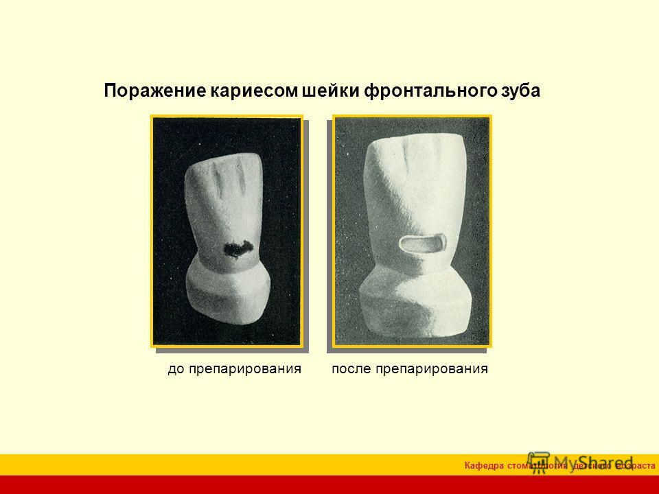 Кафедра стоматология детского возраста Поражение кариесом шейки фронтального зуба до препарированияпосле препарирования