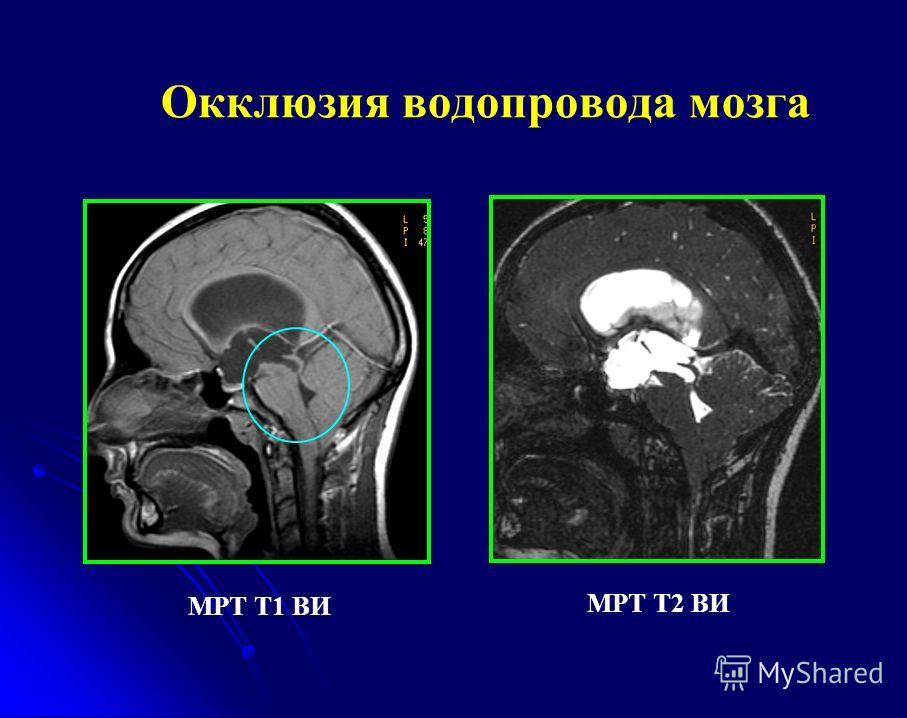 Окклюзия водопровода мозга МРТ Т1 ВИ МРТ Т2 ВИ