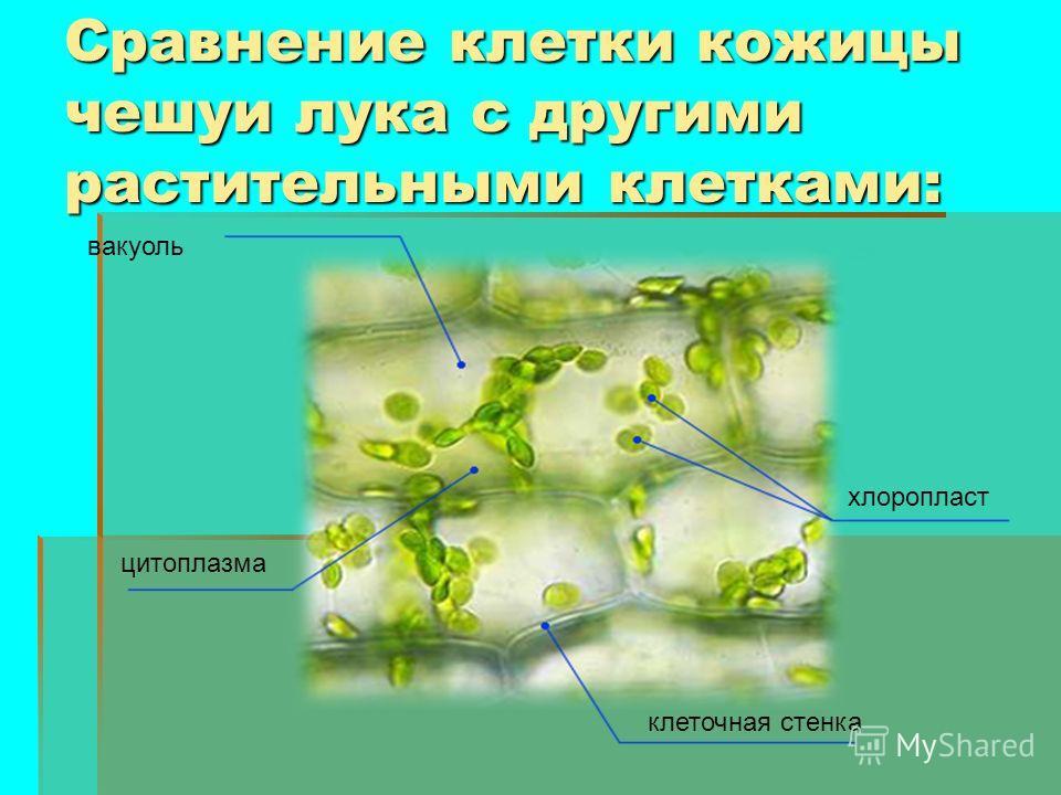 Сравнение клетки кожицы чешуи лука с другими растительными клетками: хлоропласт вакуоль цитоплазма клеточная стенка