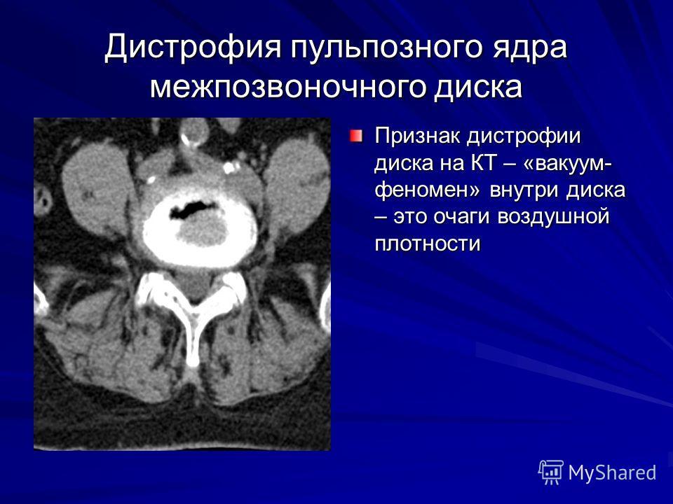 Дистрофия пульпозного ядра межпозвоночного диска Признак дистрофии диска на КТ – «вакуум- феномен» внутри диска – это очаги воздушной плотности