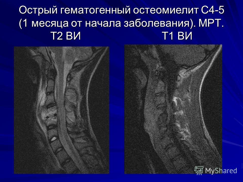 Острый гематогенный остеомиелит С4-5 (1 месяца от начала заболевания). МРТ. Т2 ВИ Т1 ВИ