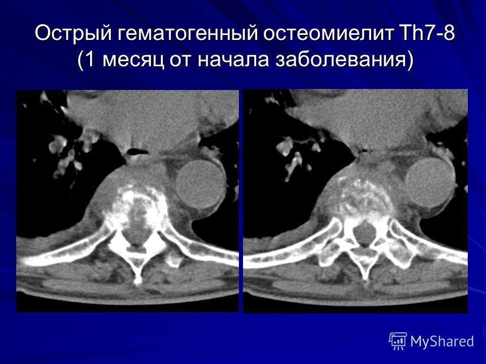 Острый гематогенный остеомиелит Th7-8 (1 месяц от начала заболевания)