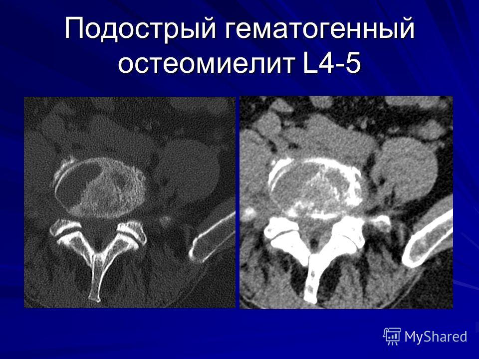 Подострый гематогенный остеомиелит L4-5
