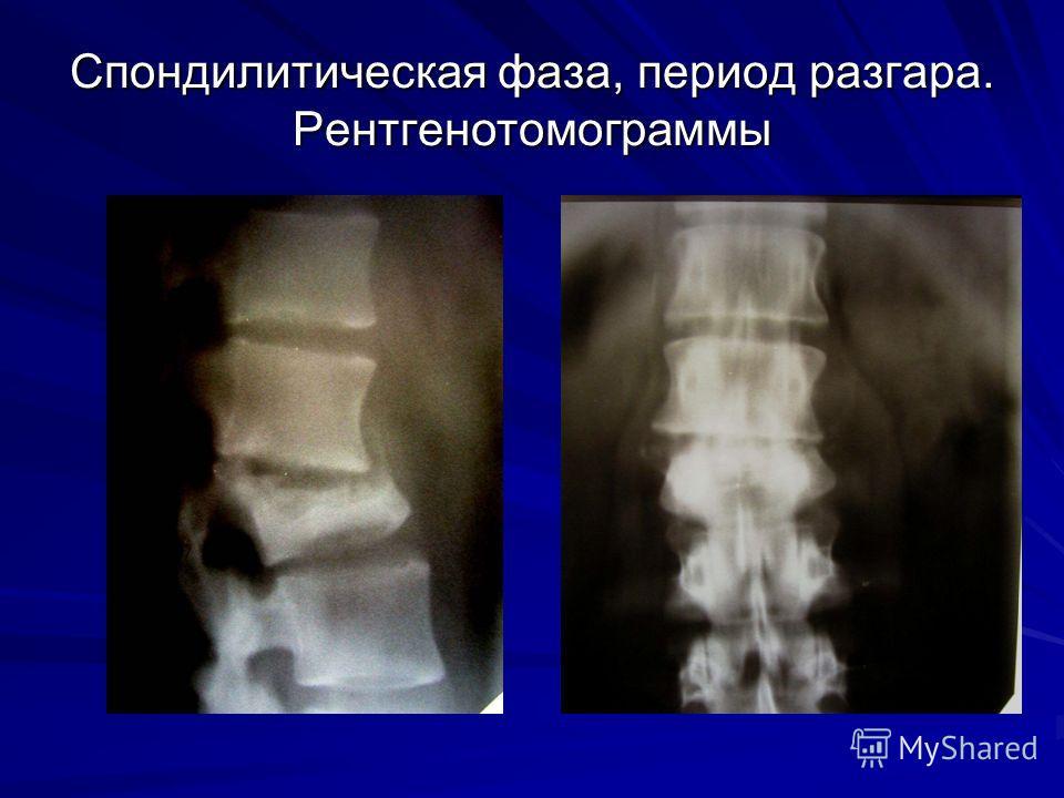 Спондилитическая фаза, период разгара. Рентгенотомограммы