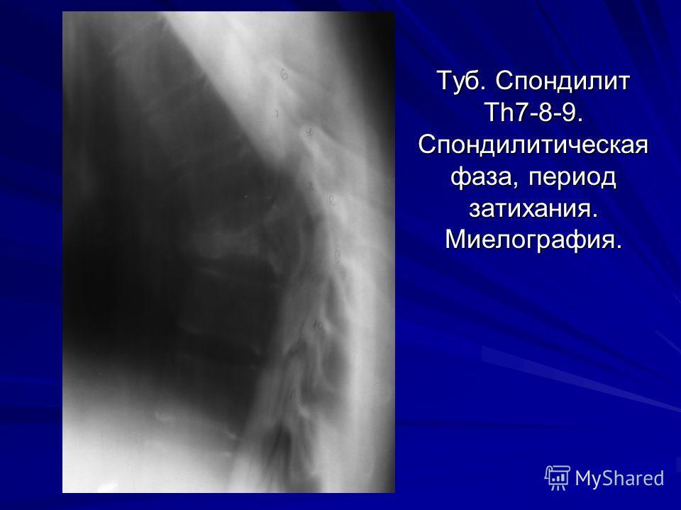 Туб. Спондилит Th7-8-9. Спондилитическая фаза, период затихания. Миелография.