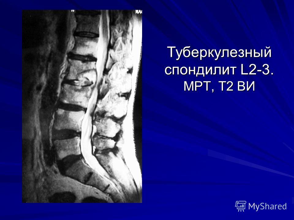 Туберкулезный спондилит L2-3. МРТ, Т2 ВИ