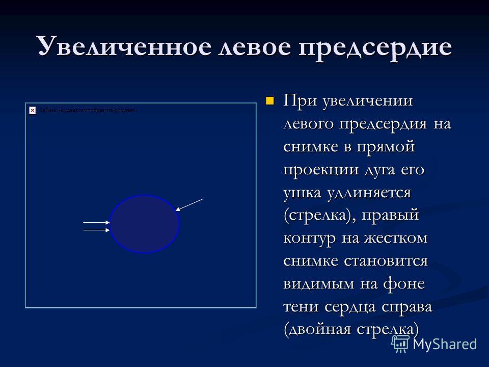 Увеличенное левое предсердие При увеличении левого предсердия на снимке в прямой проекции дуга его ушка удлиняется (стрелка), правый контур на жестком снимке становится видимым на фоне тени сердца справа (двойная стрелка)