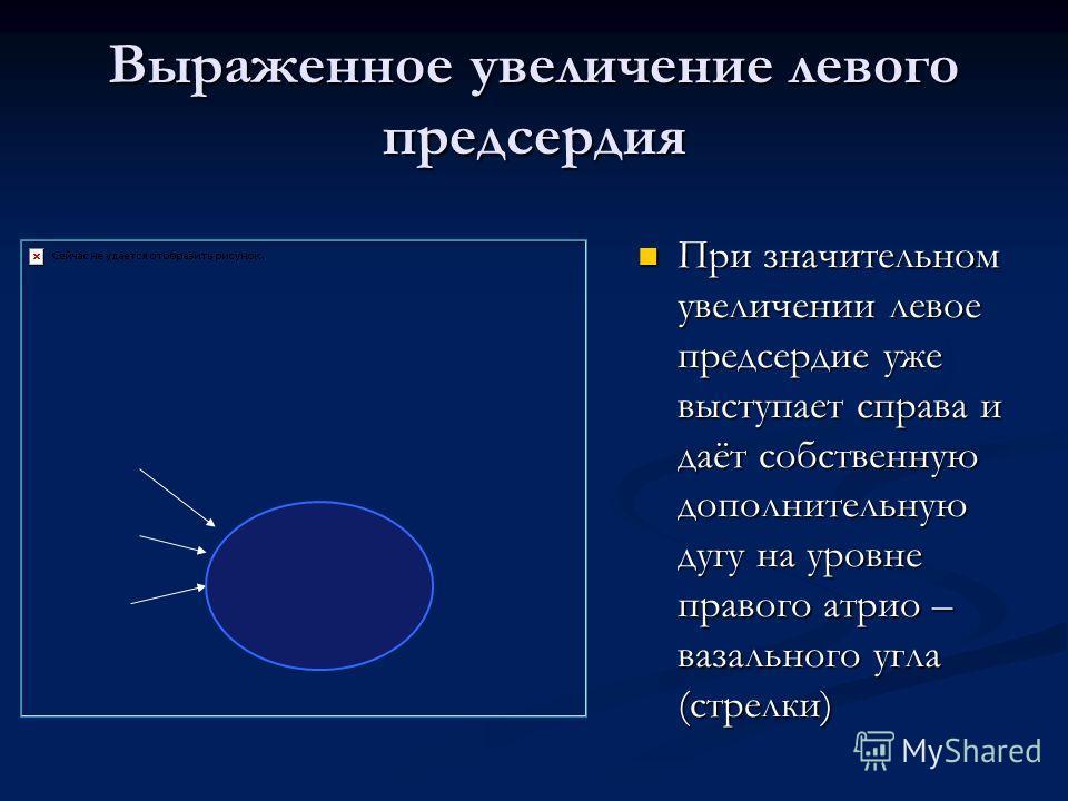 Выраженное увеличение левого предсердия При значительном увеличении левое предсердие уже выступает справа и даёт собственную дополнительную дугу на уровне правого атрио – вазального угла (стрелки)