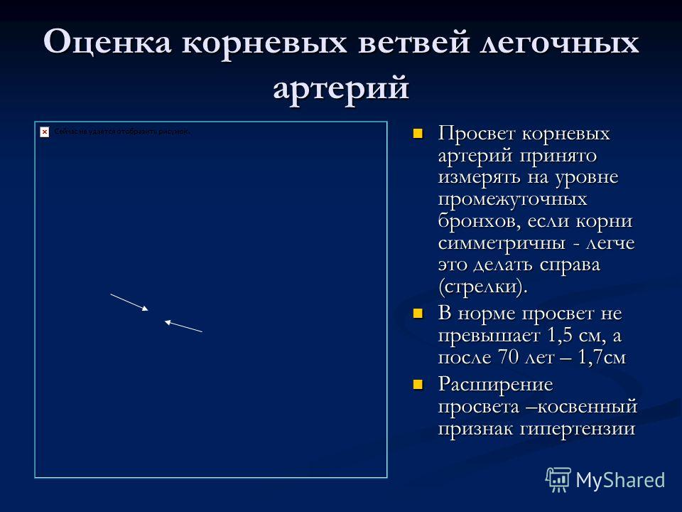 Оценка корневых ветвей легочных артерий Просвет корневых артерий принято измерять на уровне промежуточных бронхов, если корни симметричны - легче это делать справа (стрелки). В норме просвет не превышает 1,5 см, а после 70 лет – 1,7 см Расширение про