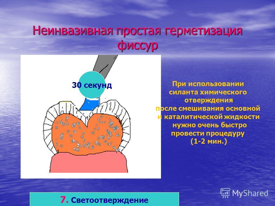 Неинвазивная простая герметизация фиссур 7. Светоотверждение 30 секунд При использовании силанта химического отверждения после смешивания основной и каталитической жидкости нужно очень быстро провести процедуру (1-2 мин.)