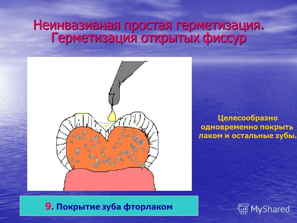 Неинвазивная простая герметизация. Герметизация открытых фиссур 9. Покрытие зуба фторлаком Целесообразно одновременно покрыть лаком и остальные зубы.