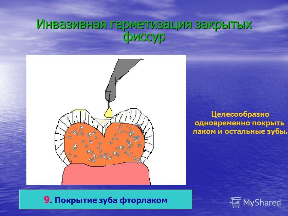 Инвазивная герметизация закрытых фиссур 9. Покрытие зуба фторлаком Целесообразно одновременно покрыть лаком и остальные зубы.