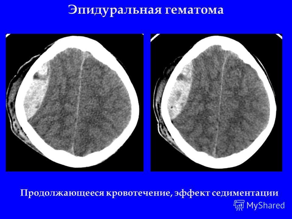 Эпидуральная гематома Продолжающееся кровотечение, эффект седиментации