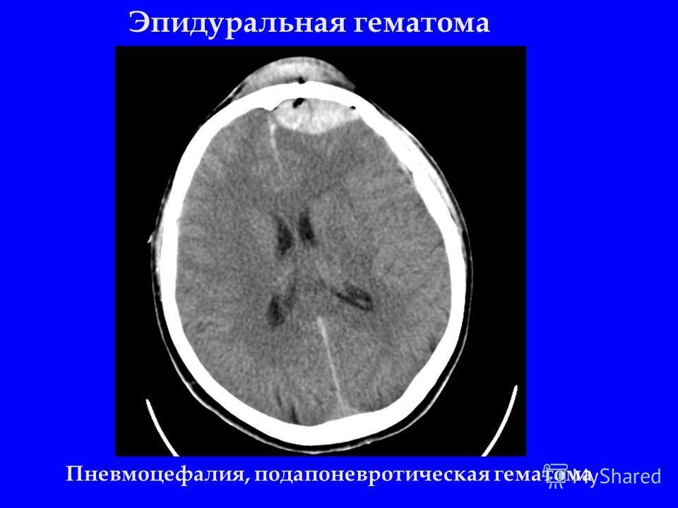 Эпидуральная гематома Пневмоцефалия, подапоневротическая гематома