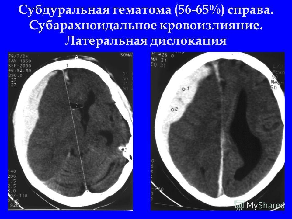 Субдуральная гематома (56-65%) справа. Субарахноидальное кровоизлияние. Латеральная дислокация