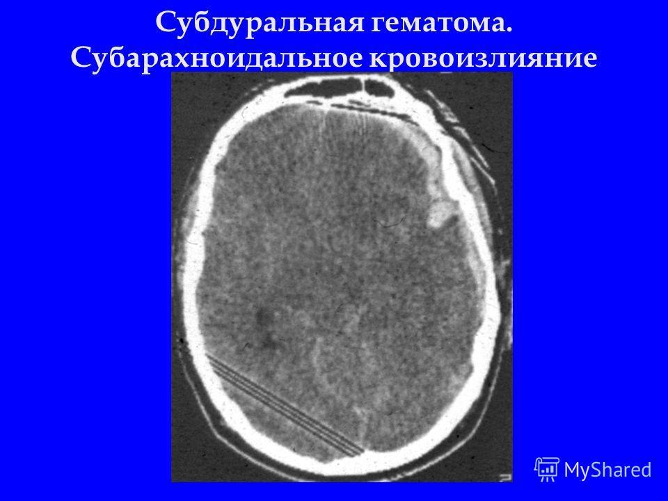 Субдуральная гематома. Субарахноидальное кровоизлияние